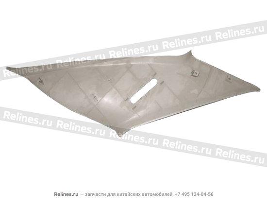 Pillar set r c.upper - A15-5402076